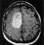 Corte-axial-de-exame-de-ressonancia-magnetica-apos-injecao-de-gadolineo-evidenciando