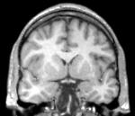Figura-7-Corte-coronal-de-ressonancia-magnetica-ponderado-em-T1-no-nivel-do-pedunculo.ppm