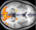 220px-Functional_magnetic_resonance_imaging