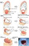 250px-2920_Stages_of_Childbirth-02-es