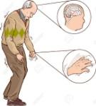 52750034-ilustración-vectorial-del-hombre-de-edad-con-síntomas-de-parkinson-difícil-caminar