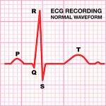 ecg_normal_waveform
