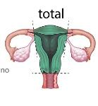histerectomia (1)