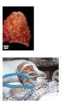 Pseudomonas aeruginosa lung inf.