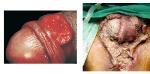 Klebsiella granulomatis