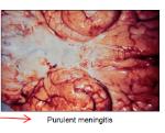 Haemophilus influenzae type b MENINGITIS