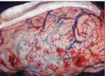 Neisseria meningitidis purulent meningitis