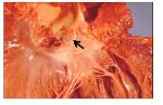 HACEK induced ENDOCARDITIS