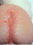 Neisseria gonorrhoeae urethritis