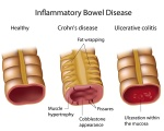 crohndiseaseulcerativecolitis6981242156-1