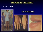 HYPERPITUITARISM+GIGANTICISM+ACROMEGALY
