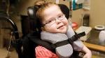 cerbral palsy