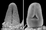 Different-carpel-closure-process-in-Calycanthaceae-and-Lauraceae-in-ventral-view-A