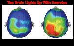 Hillman Brains