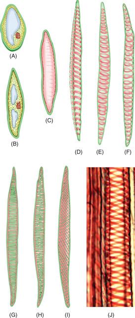 Botany Tracheids Pic
